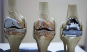 operasi penggantian sendi lutut