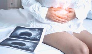 penyebab kista ovarium